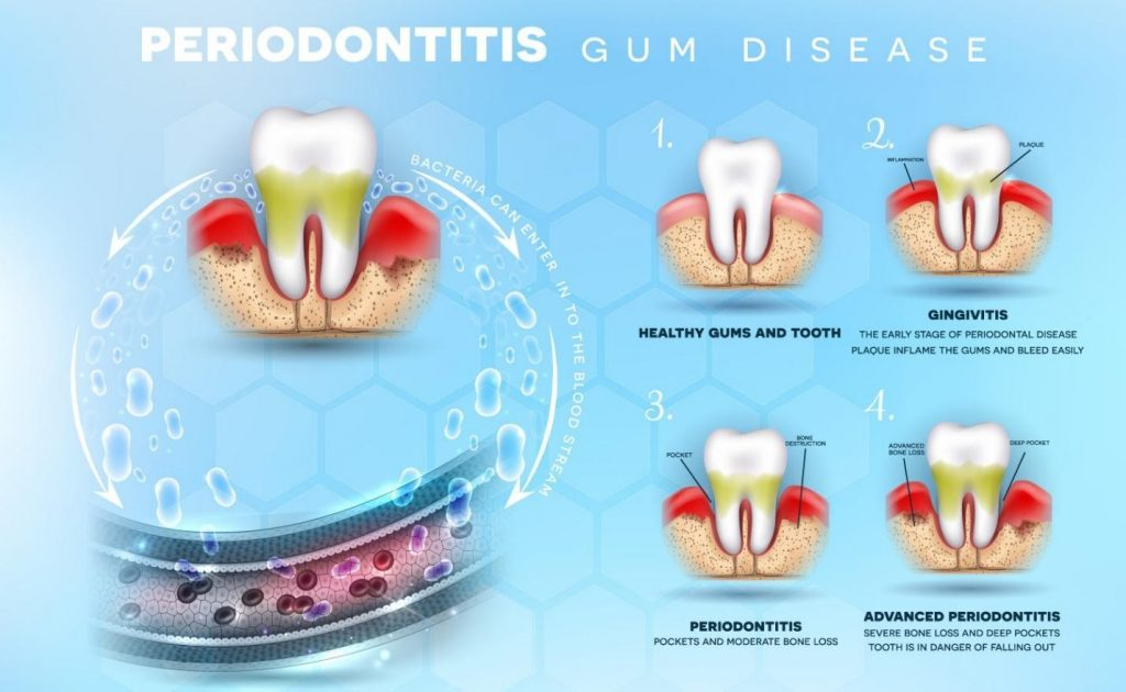 Periodontitis & Gum Therapy